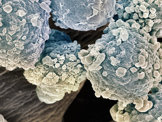 Aumentano i casi di tumore del sangue in Italia, ma anche le guarigioni