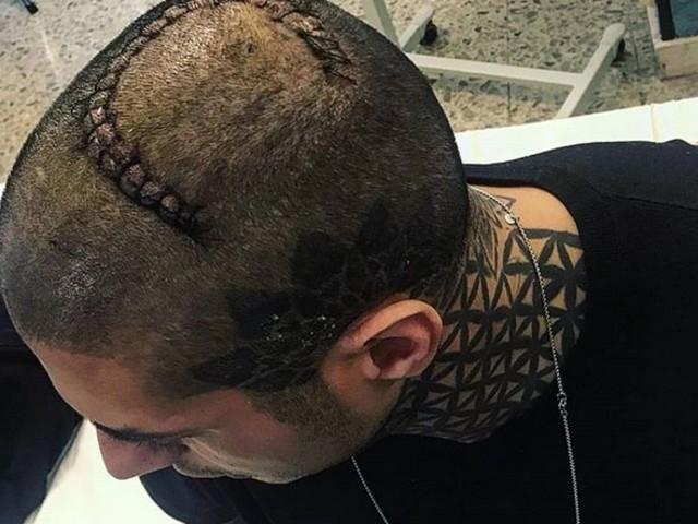 Francesco Chiofalo: cicatrice e convalescenza in una clinica riabilitativa a Roma (foto)