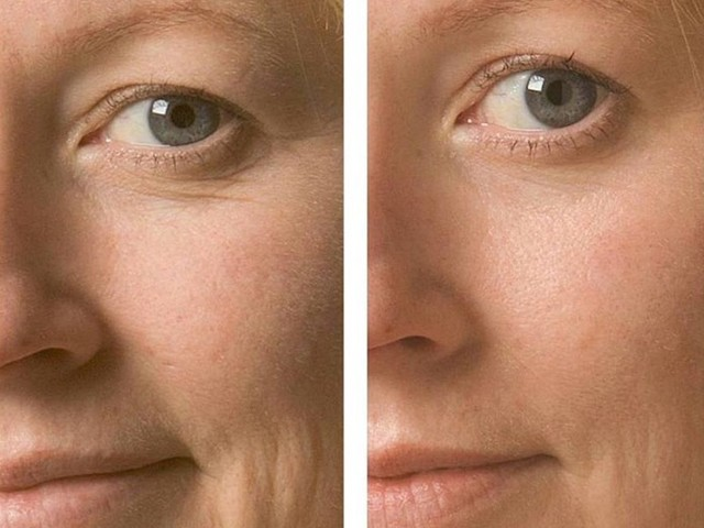 Ossigenoterapia viso e capelli