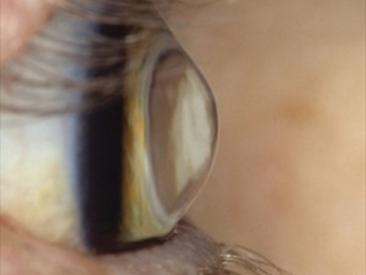 Trapianto di cornea (cheratoplastica)