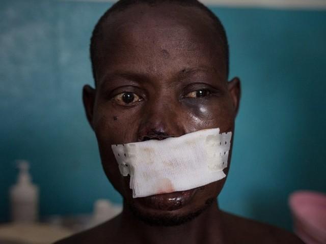 L'orrore nella Repubblica Centrafricana: in 30mila in fuga dalle violenze
