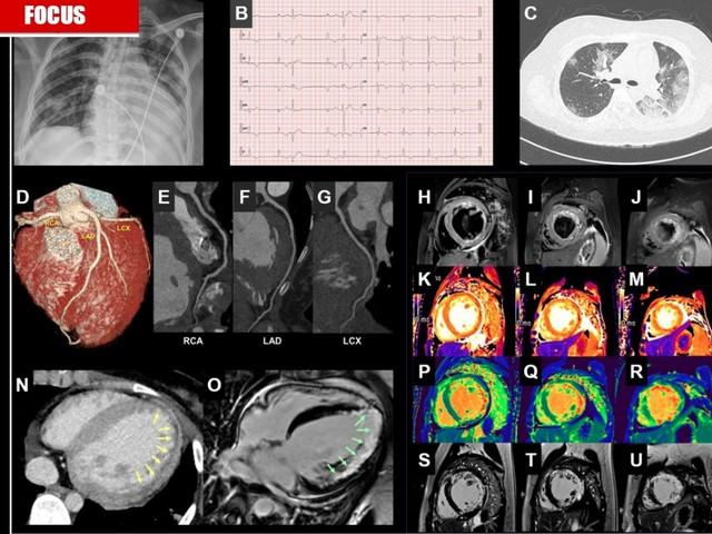 Covid-19, triplicati i morti per infarto. Ma è tutta colpa del virus?