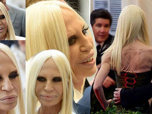 Donatella Versace rovinata dalla chirurgia: ecco com'era da giovane [FOTO]