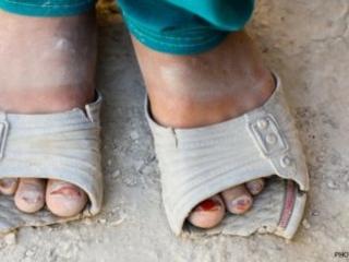 Povertà nel mondo: i conti non tornano