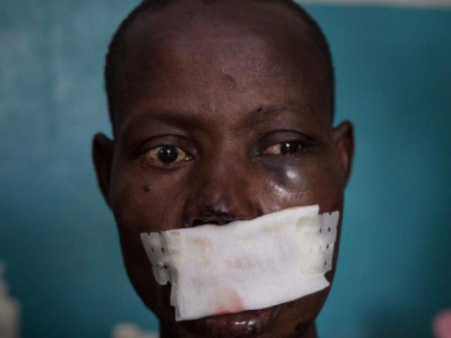 Emergenza Repubblica Centrafricana