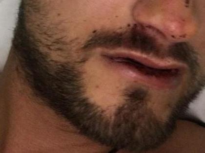 Immigrato clandestino marocchino sfonda il cranio a un poliziotto a Viareggio: foto choc, com'è ridotto