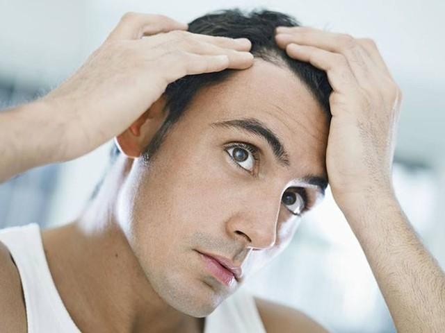 Diradamento capelli: cosa fare e metodi naturali