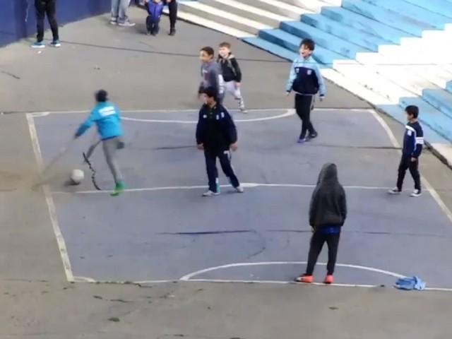 Argentina: il gol magico del bimbo con le stampelle
