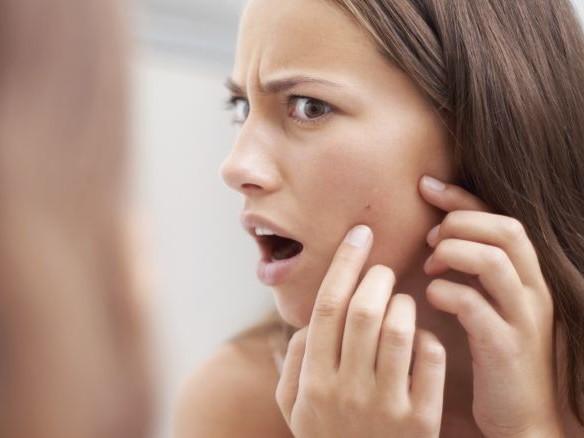 Il *rimedio definitivo contro l'acne* è l'inositolo? Cos'è e come usarlo al meglio