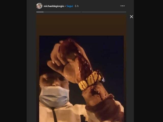 Ex protagonista di Temptation Island accoltellato dalla sua fidanzata con una forbice