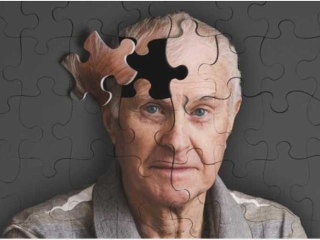 Quel batterio che dalle gengive innesca l'Alzheimer: lo studio su 570 pazienti campione