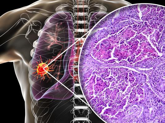 Una diagnosi più precisa per prevedere il cancro al polmone tra i fumatori