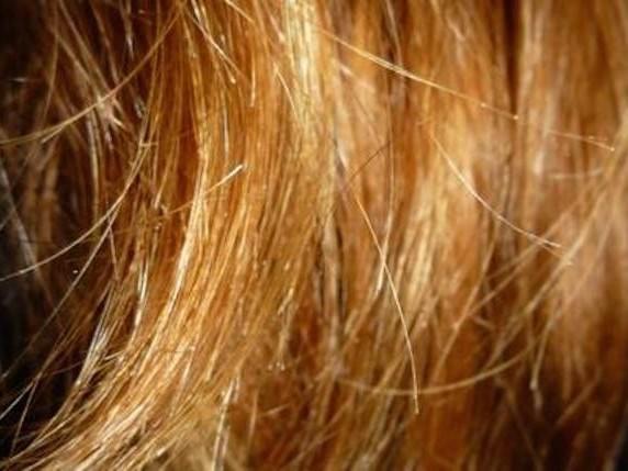 Quante volte a settimana si lavano i capelli? Se lo fai troppo spesso conseguenze terribili