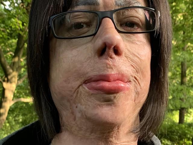 L'uomo senza pelle chiede giustizia alla Corte europea