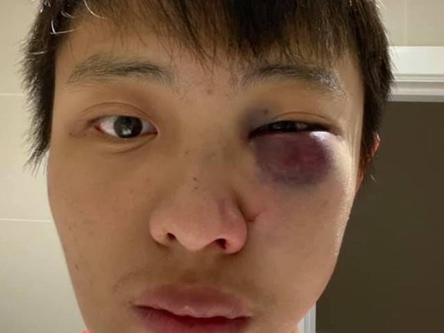 Gran Bretagna, studente asiatico pestato per il coronavirus: ma il movente è razziale