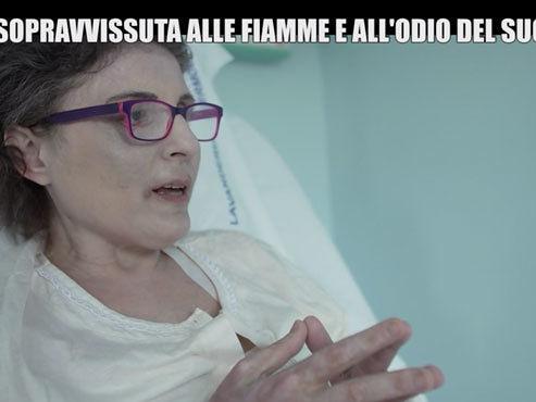 """Cosparsa di benzina e data alle fiamme dal marito, il dramma di Antonella a """"Le Iene"""" (VIDEO)"""