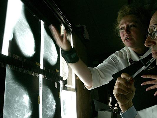 A Ventimiglia primo screening contro tumore al seno per dipendenti Comune