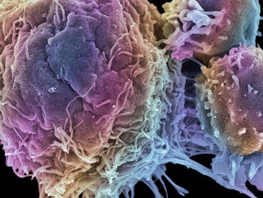Il governo ha investito 60 milioni sulle terapie anticancro CAR-T. Ecco cosa sono