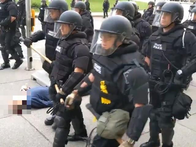 Durante una delle manifestazioni per George Floyd, 75enne viene spinto e lasciato sanguinate a terra – VIDEO