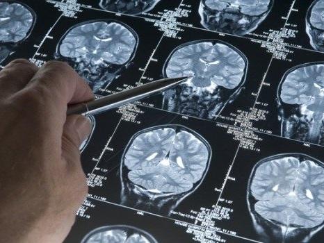 Alzheimer, 700 mila italiani non sanno di esserne malati: come scoprirlo
