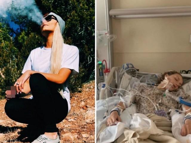 """In coma a 18 anni per una malattia rara ai polmoni: """"Colpa della sigaretta elettronica"""""""