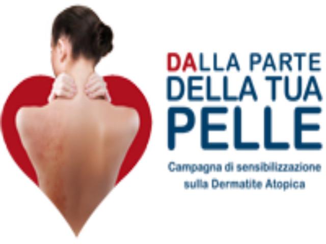 VISITE DERMATOLOGICHE GRATUITE PER DERMATITE ATOPICA DELL'ADULTO: IFO SAN GALLICANO, 26 OTTOBRE 2019