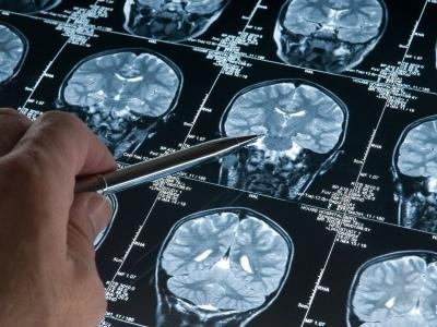 Scacco all'Alzheimer, scoperta la molecola che blocca la malattia