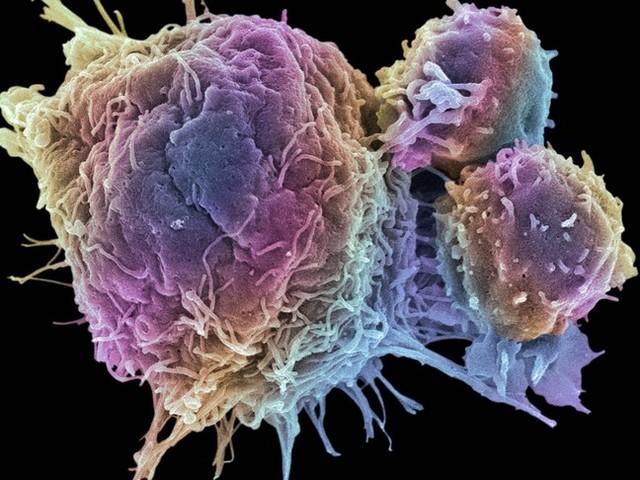 I due farmaci potentissimi contro il tumore al colon-retto