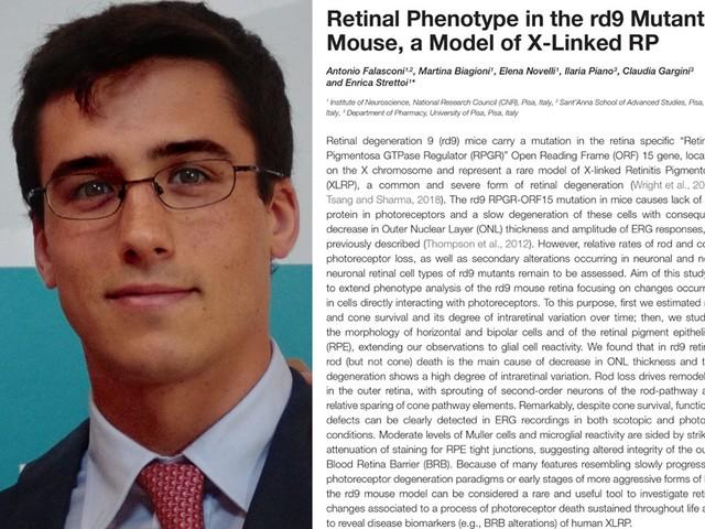 Pisa: allievo della Sant'Anna firma studio su retinite prima della laurea