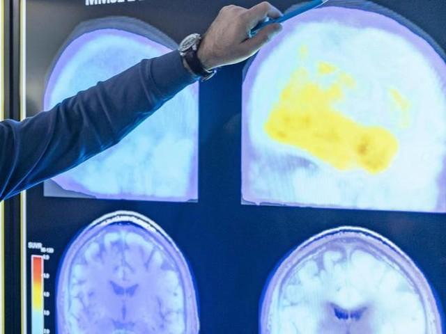 Alzheimer: nella dopamina la chiave per diagnosticare la malattia due anni prima che si manifesti