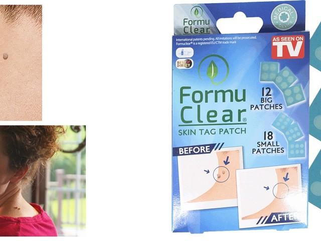 Formu Clear Skin Tag Patch: opinioni, controindicazioni, prezzo in farmacia e sito ufficiale