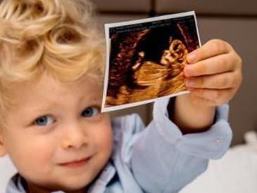 Chiara Ferragni è incinta: su Instagram la foto di Leone con l'ecografia
