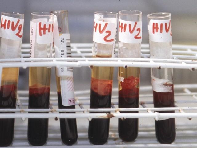 Aids, ViiV Healthcare presenta nuovi dati portfolio all'Ias 2021