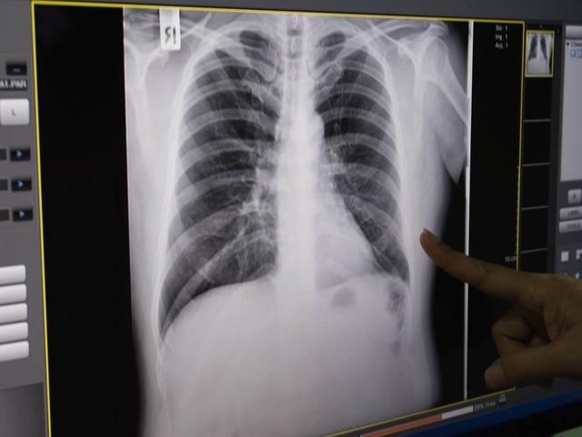 Bimbo di 5 anni contagiato da tubercolosi ricoverato in ospedale