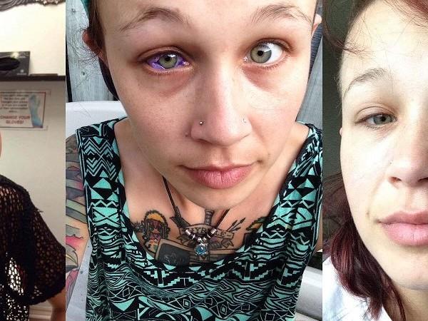 Si fa un eyeball tattoo: 24enne rischia di perdere la vista