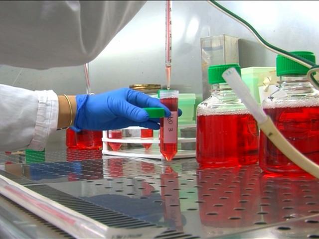 Fibrosi Cistica, da Unife possibile strategia per ridurre infiammazione polmonare