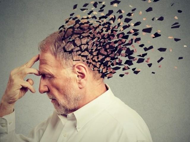 Alzheimer, scoperta molecola che blocca la malattia