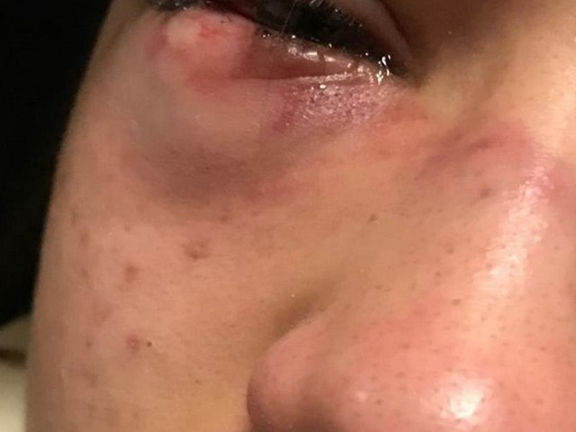 Bolzano,15enne picchiata da coetanea marocchina, il padre: 'Violenza gratuita'