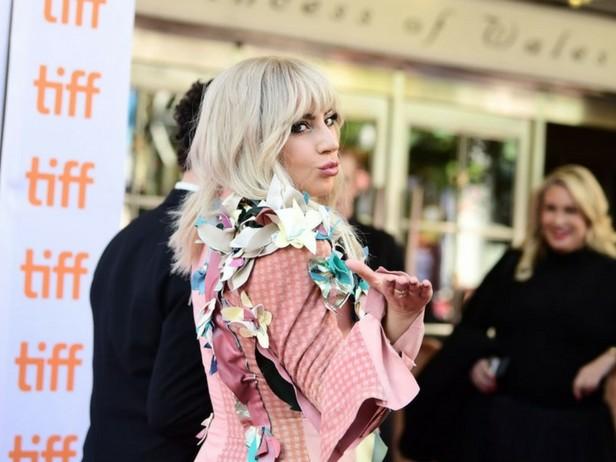 """Lady Gaga shock: """"Soffro di fibromialgia, ecco che cos'è"""""""