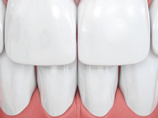 Il gel che potrebbe ricostruire lo smalto dentale rovinato dalle carie