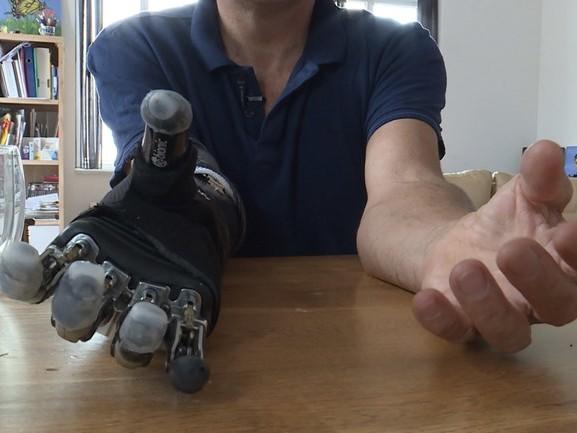 Arie heeft een robothand: 'Ik heb het omarmd, dit hoort bij mijn leven'