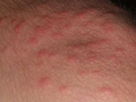 Brandhaartjes van de eikenprocessierups op je huid? Ga op zoek naar een rol plakband!
