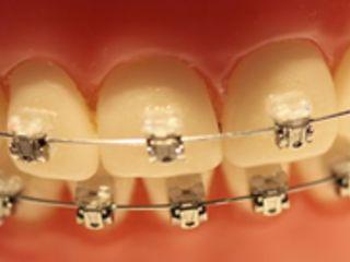 Aparaty ortodontyczne tak modne, ¿e a¿ podrabiane