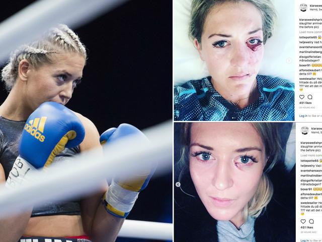 Klara Svensson på väg tillbaka efter otäcka skadan i Superstars