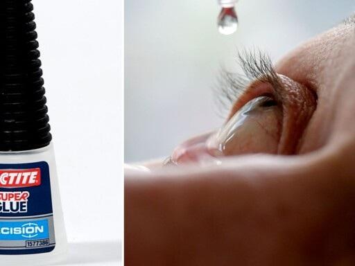 Personal hällde superlim i ögat i stället för ögondroppar – vårdtagare får skadestånd