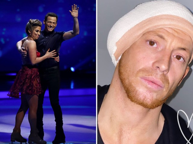 Joe Swash WILL skate in Dancing On Ice final after ear infection threatened his performance