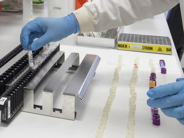 Reaction: Covid vaccine hopes raised by Oxford trial results
