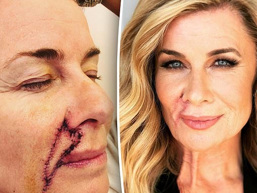 Deborah Hutton, 58, reveals how her scars are healing after having her skin cancers removed