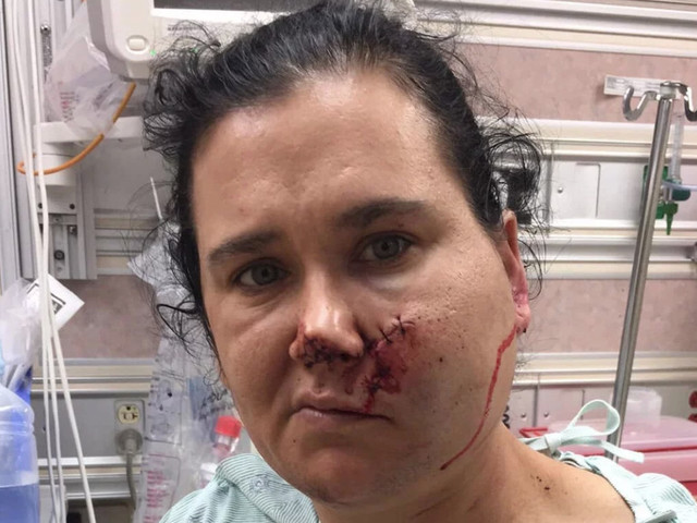 'I Was In Shock': Woman Shot In Face With Crossbow Drives Herself To Hospital