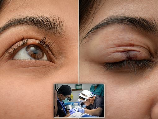 Woman, 30, has an eyelash transplant using hair from the back of her scalp